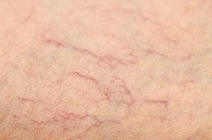 Alla har vi blodkärl i huden men oftast är de så tunna att de inte syns för ögat.